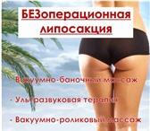 Foto в Красота и здоровье Похудение, диеты Представляем новую революционную процедуру в Кемерово 6400
